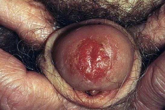 Проявление болезни Боуэна у мужчин