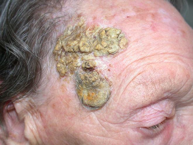 Как выглядит и чем лечить псориаз на попе