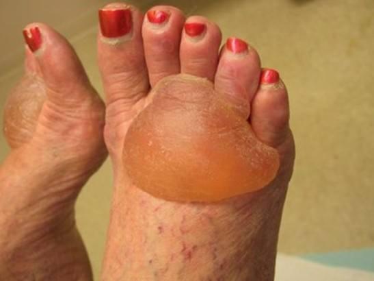 болезнь пемфигоид