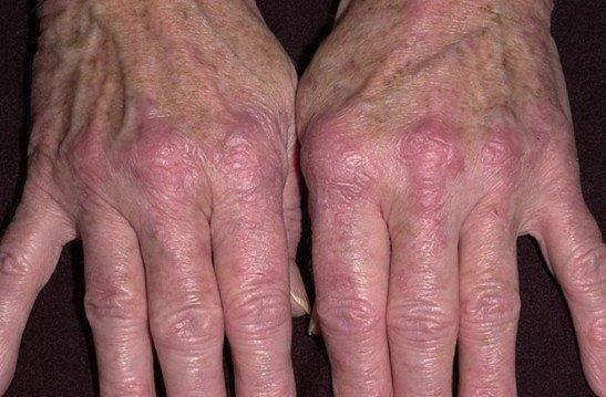 болезнь дерматомиозит фото