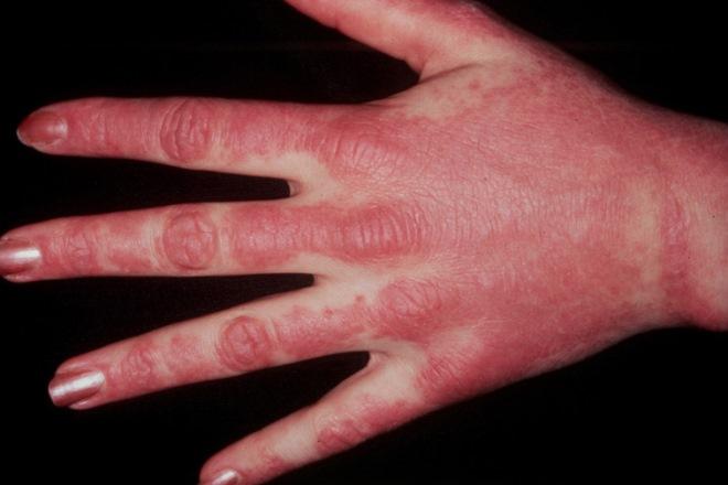 дерматомиозит кожные проявления фото
