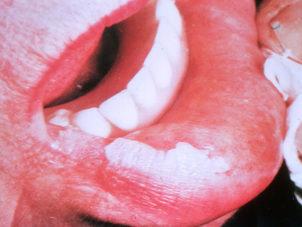 Лейкоплакия на губе