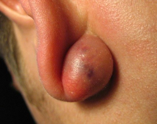 Липома мочки уха