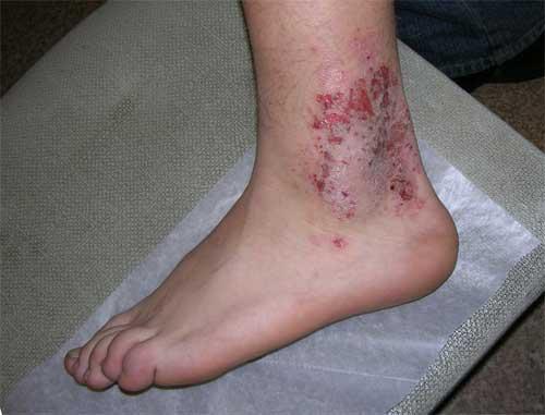 микробная экзема на ногах