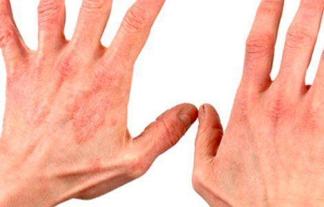 микробная экзема на руках
