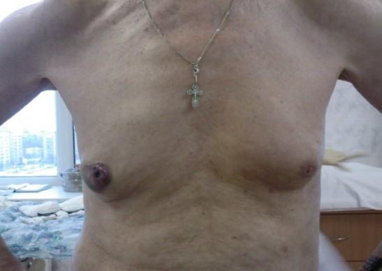 Рак Педжета соска у мужчины