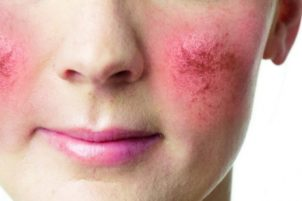 розацеа на лице причины и лечение
