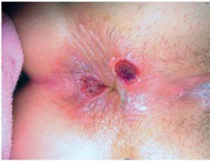 Первичный сифилис - лечение, симптомы, проявления