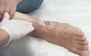 трофическая язва на ноге причины возникновения